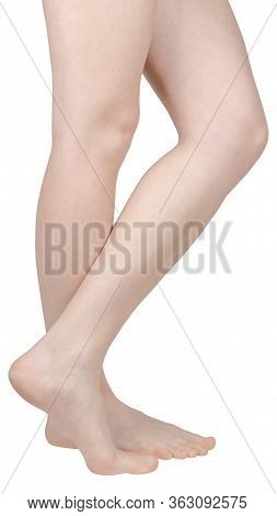 Bare Feet Of A Girl With Flat Feet, Barefoot, One Foot On Tiptoe, The Inside Of The Foot Is Seen, Si