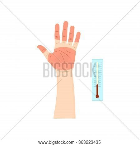 Human Hand With Dangerous Frostbite And A Thermometer In Cartoon Style On A White Background. Vector