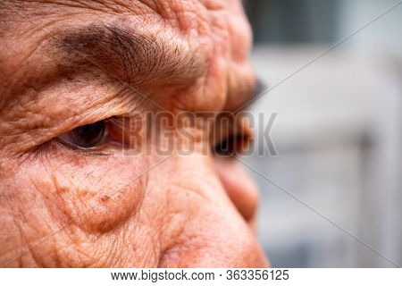 Close Up Eyes And Skin Under The Eyes Of Old Women