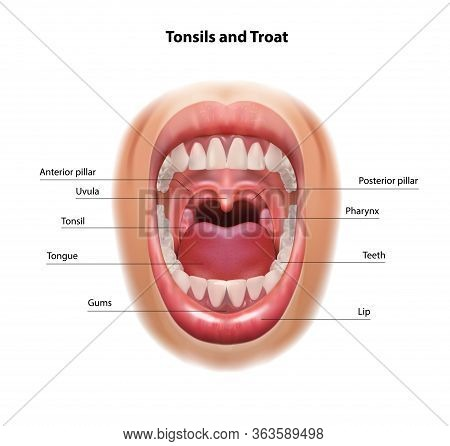Throat And Tonsils. Oral Cavity. Medical Scheme. Vector Realistic Illustration.