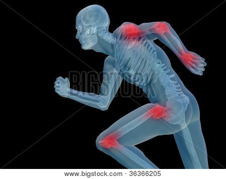 High resolution conceptual 3D human for anatomy,medicine and health designs, isolated on black background. A man made of a skeleton and a transparent blue body as in a x-ray with red painful hotspots poster