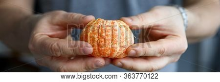 Man Holds In His Hands Peeled Whole Mandarin. Benefits Citrus During Contain. Vitamin Properties Man