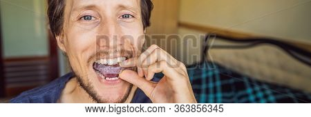 Man Placing A Bite Plate In His Mouth To Protect His Teeth At Night From Grinding Caused By Bruxism,