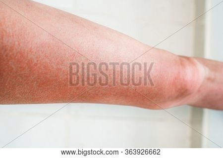Severe Sunburn, Summer Tan, Poor Sun Protection. Sun Allergies, Obstruction, Itching Pain And Bliste