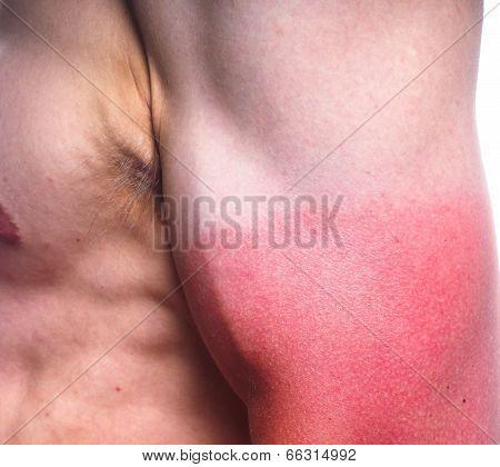 Sunburn Male Biceps