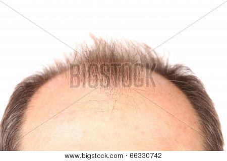 Bald men.