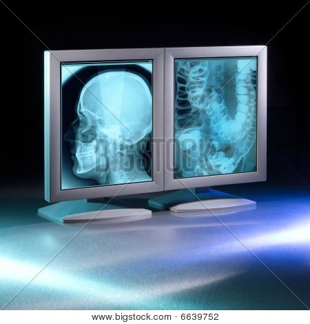Two x-ray monitors