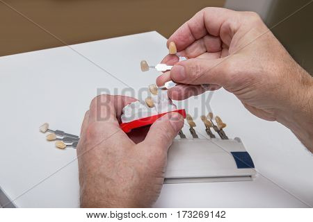 Dentist Hands With Color Guide And  Plaster Model