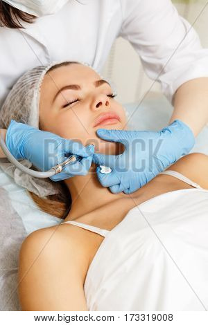 Dermabrasion cheekbones girl. Apparatus cosmetology. Spa. Facial Rejuvenation. Mechanical peeling skin.