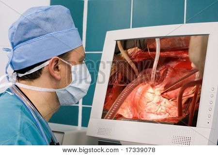 physician watching surgical operation at monitor