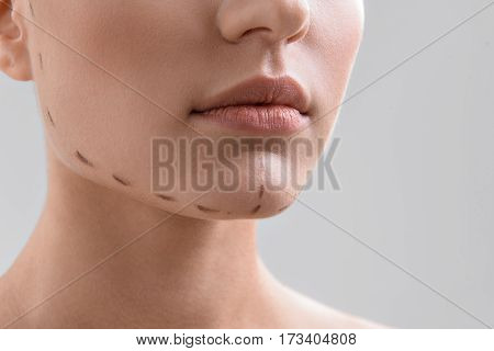 Close up of female chin with correction lines before surgery treatment. Isolated