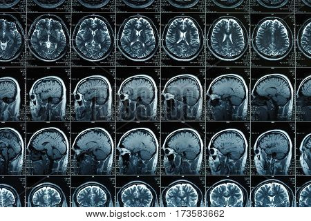 MRI scan or magnetic resonance image of head and brain scan. Close up view