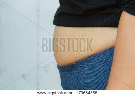 Girl Paunchy Fat