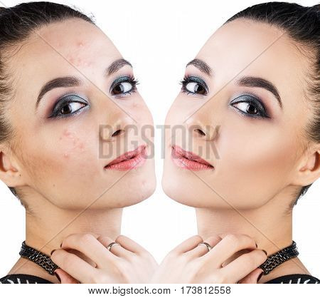 Comparison portrait of young woman with acne before and after treatment.