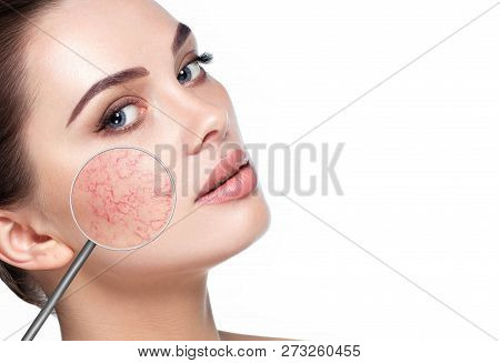 Magnifying Glass Showing Couperose On Womans Face