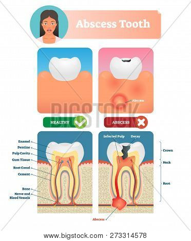 Abscess Tooth Vector Illustration. Labeled Medical Diagram With Structure. Compared Isolated Infecte