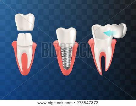 Realistic Illustration Set Teeth Different Problem. Vector Image 3d Visualization Orthodontic Restor