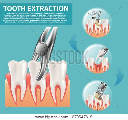 Realistic Illustration Tooth Extraction Vector 3d. Banner Infographic Image Procedures Tooth Extract