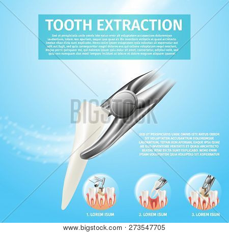 Realistic Illustration Tooth Extraction Vector 3d. Banner Infographic Image Procedures Incisor Tooth