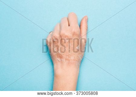 Cropped View Of Female Hand With Dry, Exfoliated Skin On Blue