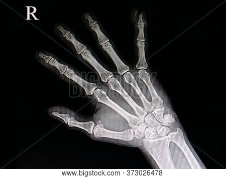 Xray Of A Hand Of A Patient With Accidental Traumatic Amputation Of Little Finger Tip