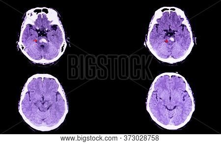 A Ct Scan Of The Brain Of A Patient With Intracranial Hemorrhage. The Lesion Is In The Pons And Exte