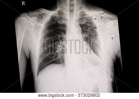 Cheat Xray Of A Traumatic Patient. Blue Arrows Show Fracture Left Clavicle, Scapular,  Posterior Rib