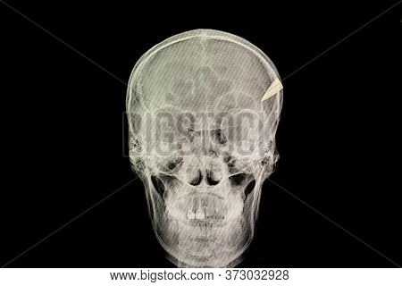 Skull Penetration Injury With A Tip Of Steel Knife Retained In The Skull