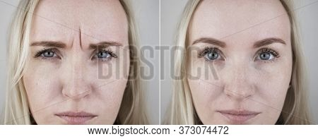 Photos Before And After Mesotherapy, Biorevitalization, Botulinum Toxin Injections. Skin Fold Betwee