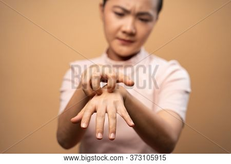 Asian Woman Was Sick With Irritate Itching Her Skin Standing Isolated On Beige Background.