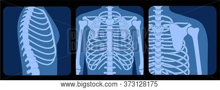 Human Rib Cage Anatomy Flat Vector Illustration In Front, Profile And Back On X Ray View. Man Torso