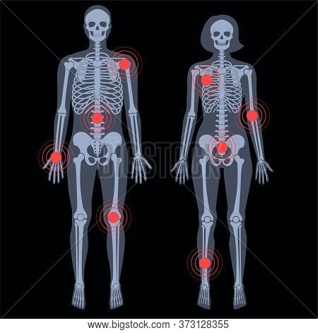 Human Woman And Man Skeleton Pain, Fracture Or Inflammation In Front On X Ray View. Vector Isolated