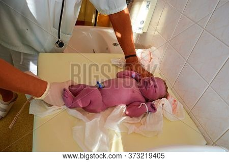 New Born Baby - Girl With Remainder Of Umbilical Cord After Successful Childbirth. Real Birthing And