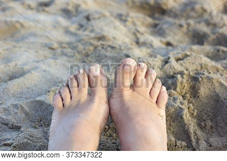 Webbed Toes- Birth Defect. Close Up Of Fused Toes On An Adult Caucasian Female On The Beach Backgrou