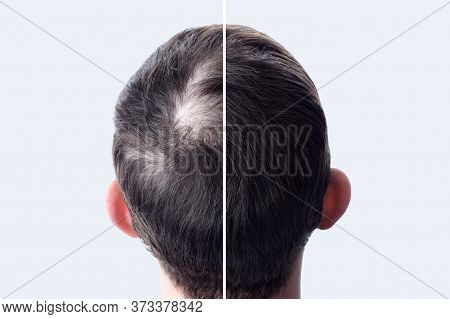 Men Hair After Using Cosmetic Powder For Hair Thickening. Crown With Bald Head. Before And After.