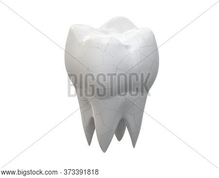 Cracked Molar Tooth Isolated On White Background. 3d Illustration