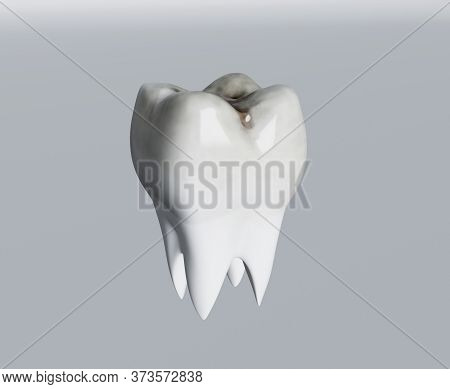 Cavities Of Molar Tooth, Tooth Decay, Caries. 3d Illustration