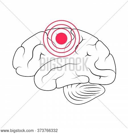 Vector Isolated Illustration Of Pain, Inflammation Or Tumor In Human Brain Anatomy Cerebrum And Cere