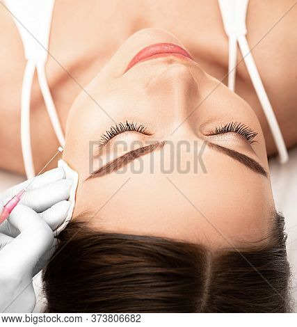 Thread Lift , Cosmetic Technique, Lifting Face Skin. Woman Having Procedure Tighten Skin On The Face