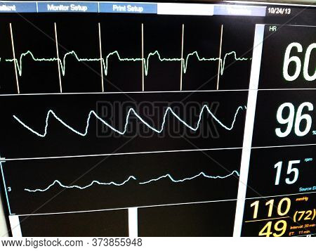 Icu Monitor Screen Showing Pacemaker Spikes On Top Tracing