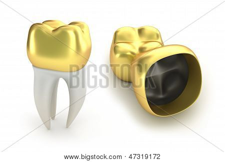 Golden Dental crowns and tooth, isolated on white poster
