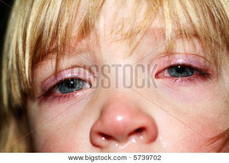 Sick Ill Child