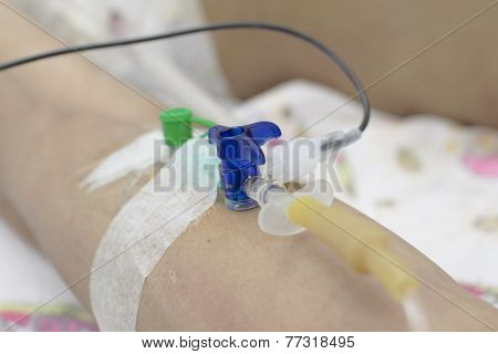 Catheter Into The Vein. Introduction Of Preparations.