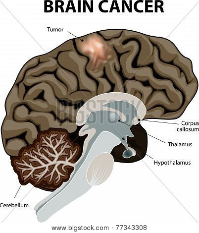 A brain tumor is an abnormal growth of tissue in the brain. Human anatomy poster