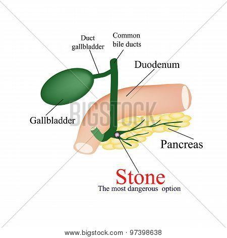 Stone pancreatic bile duct. The most dangerous rock. The gall bladder, duodenum, bile ducts. Vector