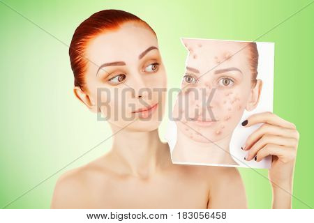red haired woman fights with pimples, green background