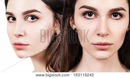 Young beautiful woman with white arrows on her face. Face lifting concept.