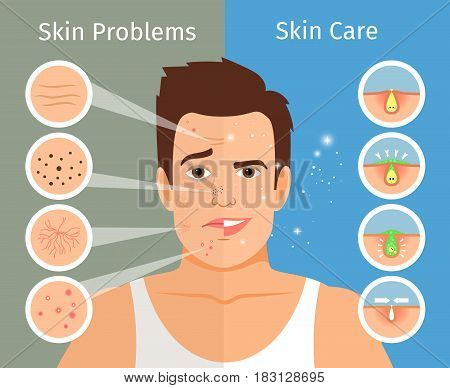 Male face skin treatment vector illustration. Young man portrait with beautiful and troubled facial skins