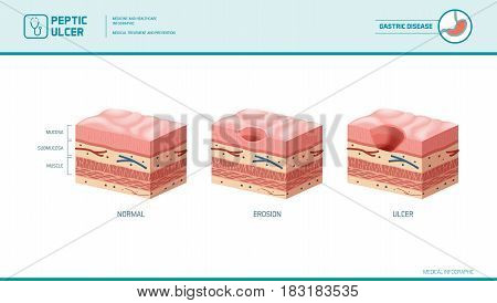 Stomach erosion and peptic ulcer stages infographic: stomach lining and mucosa cross section diagram medical illustration