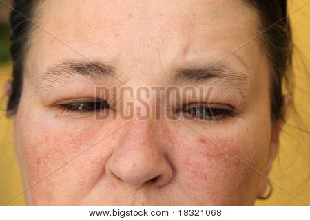 Allergy Or Conjunctivitis - Close-up